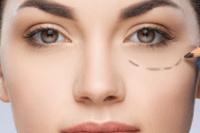 Eyelid Surgery (Lower)
